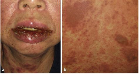 A Case of Drug Reaction with Eosinophilia and Systemic