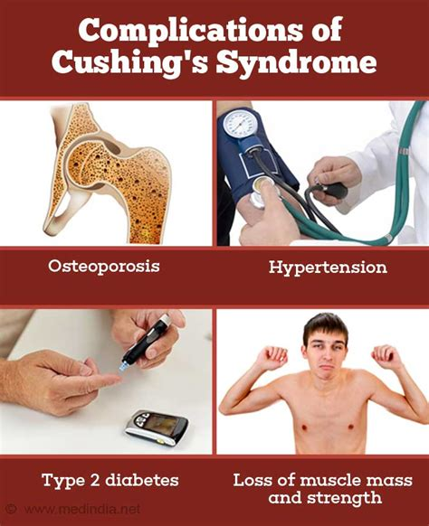 Cushing's Syndrome - Causes, Symptoms, Diagnosis and