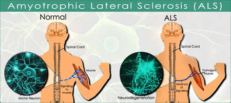 Amyotrophic Lateral Sclerosis (ALS) | Diseases and Their