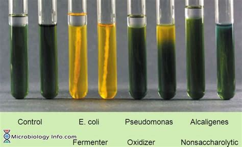 OF (Oxidation-Fermentation) Test - Procedure, Uses and